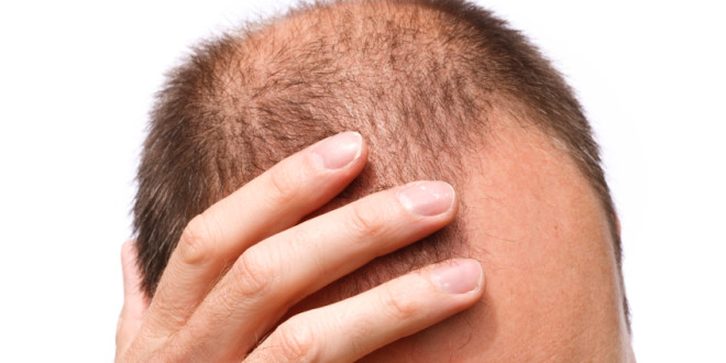 6 Best Natural Tips to Prevent Hair Loss and Promoting Hair Growth